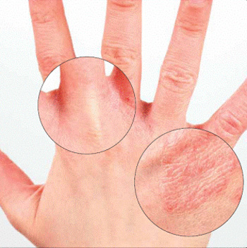 الجلد,اسباب الجلد,توصيات 13672480421.jpg