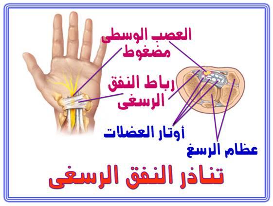 اليدين,اسباب 13687743781.jpg