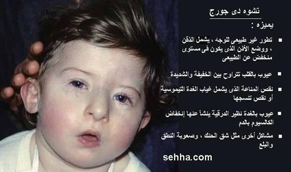 جورج,اعراض الاصابة بمتلازمة 13688184731.jpg